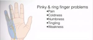 Pain or numbness in pinky or ring finger