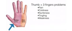 Pain in thumb and 1st 2 1/2 fingers